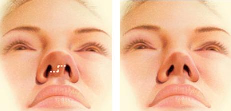 140 HAWA-Rhinoplasty, Perbaikan Bentuk Hidung Bersama Dr. Kadek Adnyani Astutidewi, S. Ked-4
