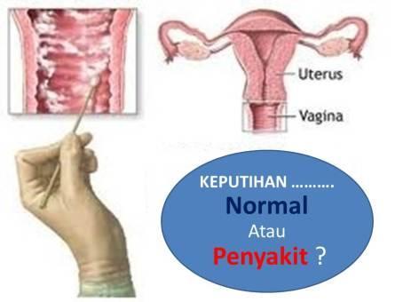 154 HAWA-KEPUTIHAN (LEUKORE) Dr. Mintareja Teguh, dr., SpOG(K)-3