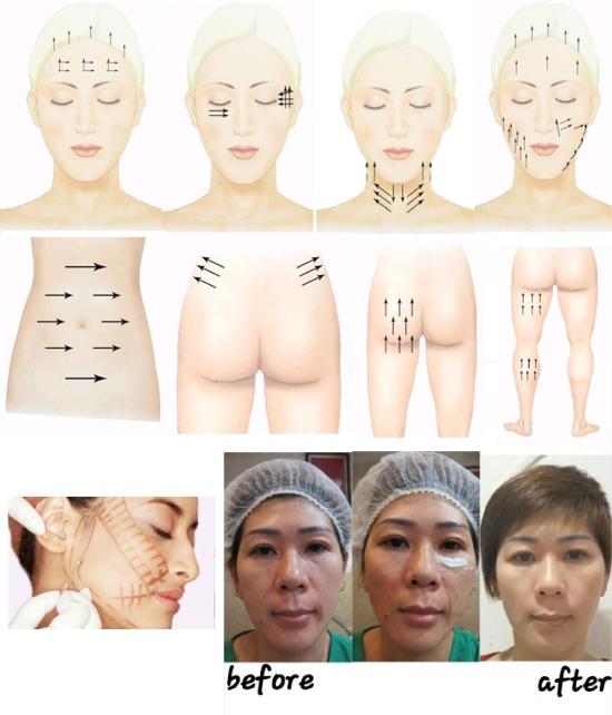 157 HAWA-Tanam Benang (Thread Lift) Untuk Mengencangkan Wajah Bersama Dr. Kadek Adnyani Astutidewi, S. Ked.-3