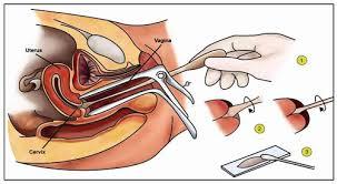 169 HAWA-Tanya Jawab Bersama Dr. Meike Penjelasan Pap Smear, HSG, dan IVA-3