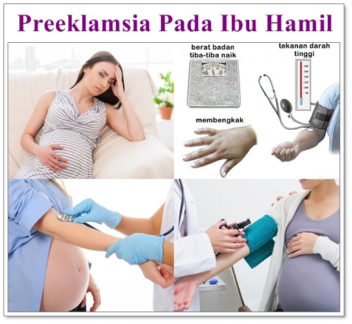215 HAWA-Preeklampsia BersamaDr. Mintareja Teguh, dr., SpOG(K)-1