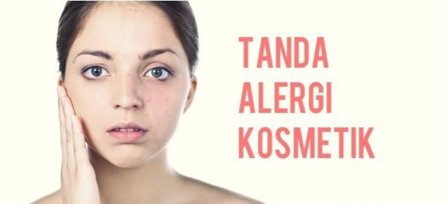 280 HAWA-Cara Mengatasi Kulit Yang Alergi Kosmetik-1