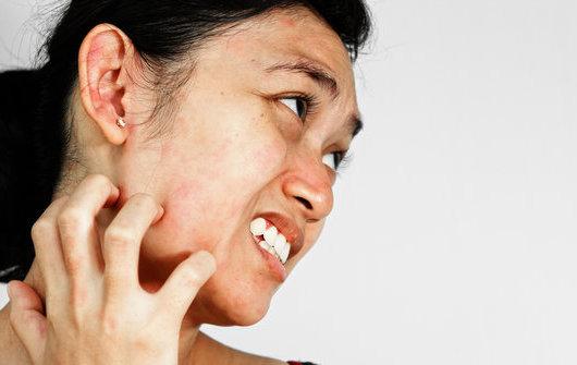 280 HAWA-Cara Mengatasi Kulit Yang Alergi Kosmetik-5